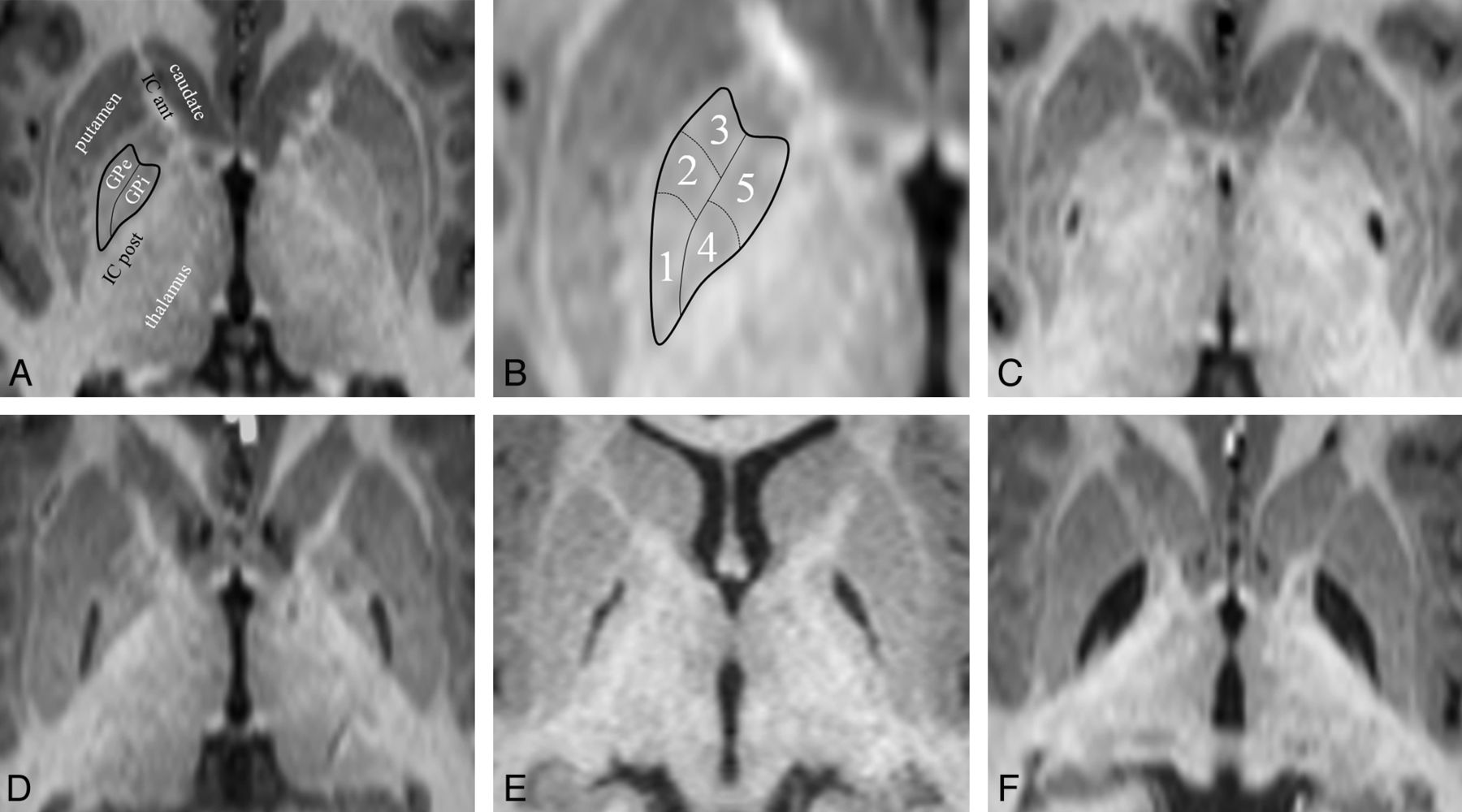 MRI Characteristics of Globus Pallidus Infarcts in Isolated ...