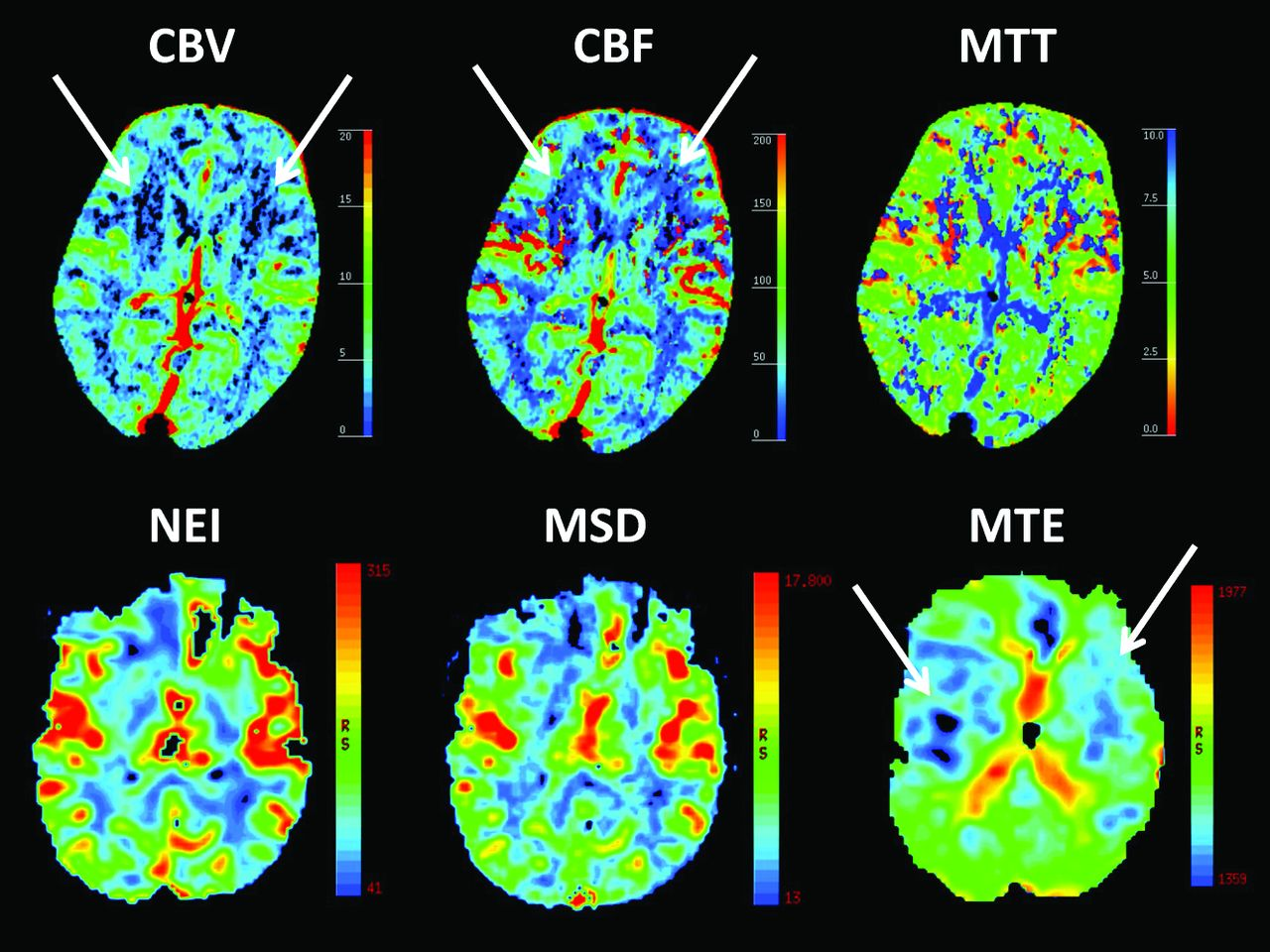 ctp in transient global amnesia  a single