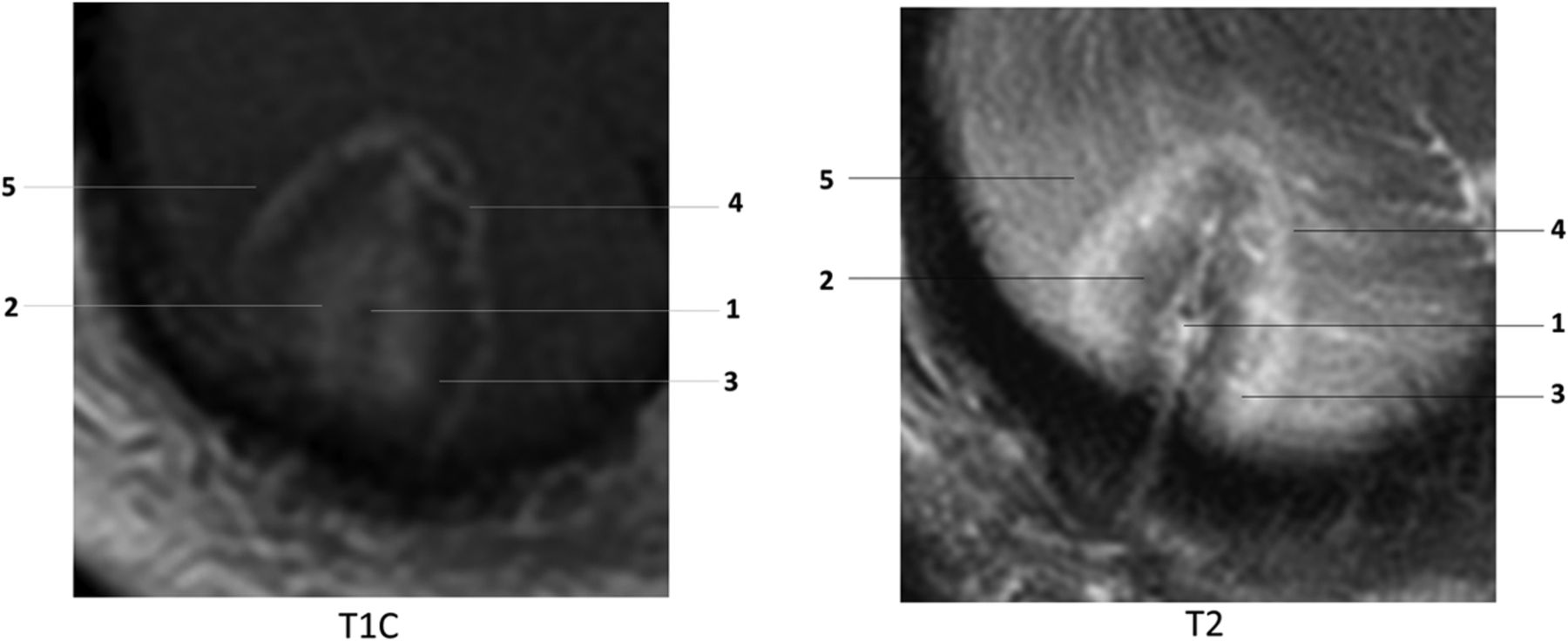 Current Applications of MRI-Guided Laser Interstitial Thermal