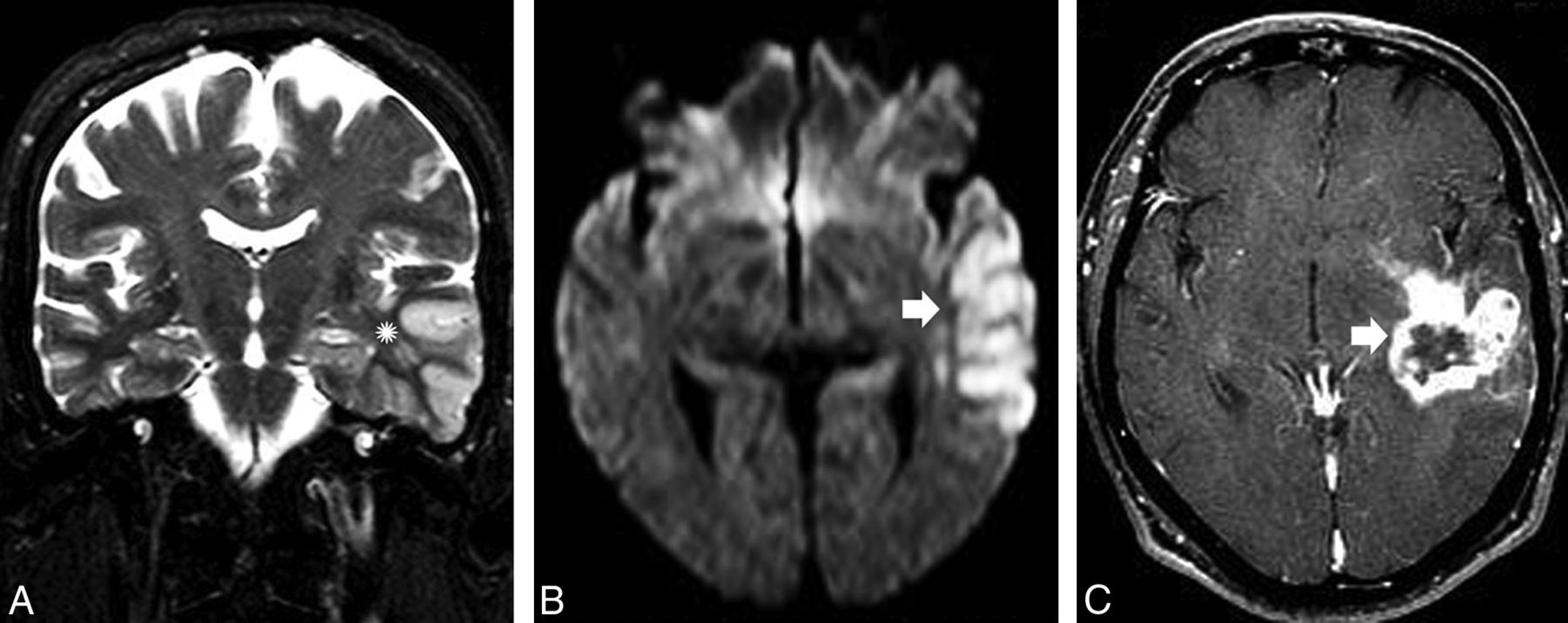 Recognizing Autoimmune-Mediated Encephalitis in the