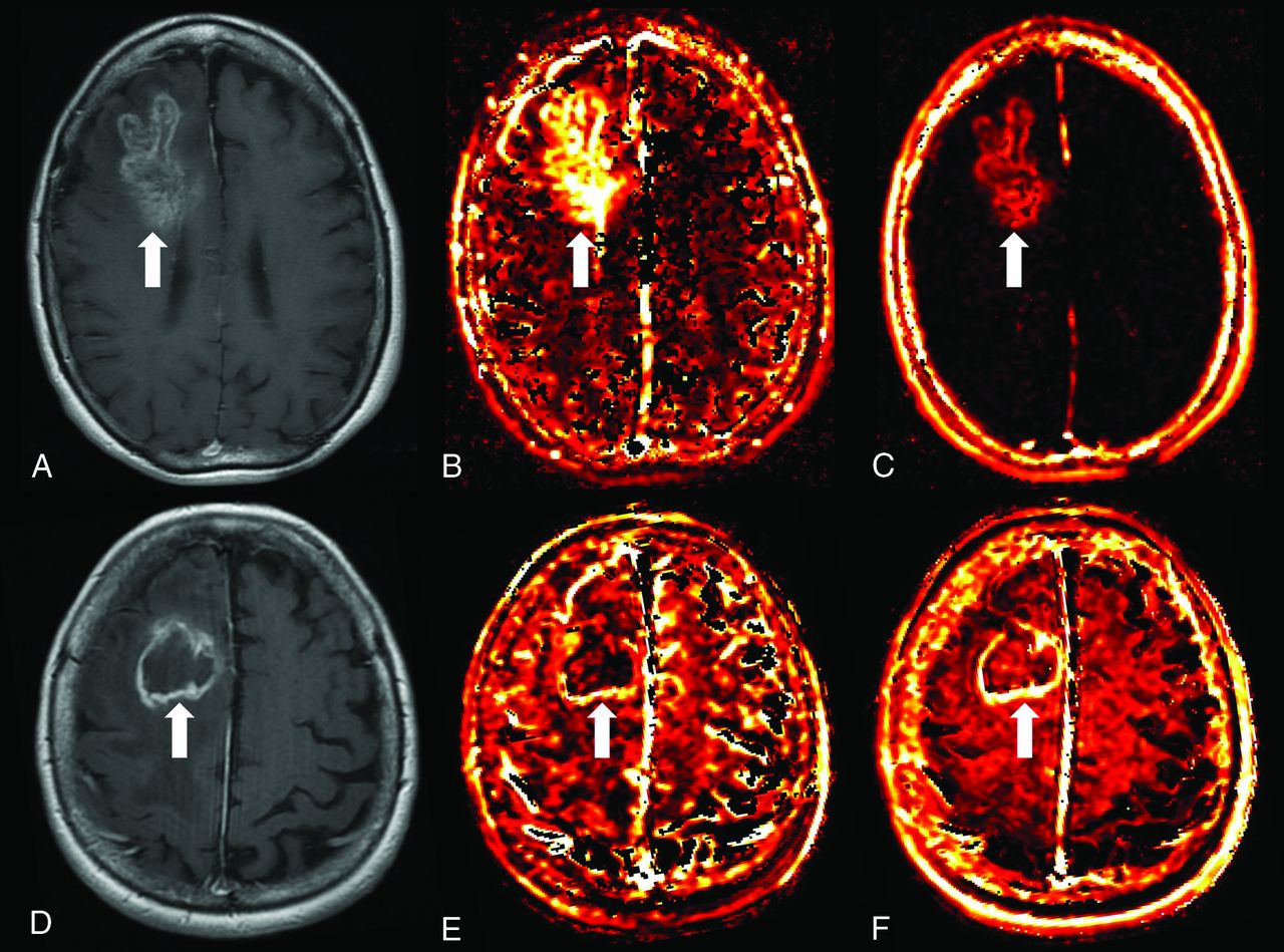 development of dynamic contrast enhanced mri Future science group wwwfuturemedicinecom 175 dynamic contrast-enhanced mri in cancer review reports of nephrogenic systemic fibrosis linked to the use of high doses of gd-based contrast.