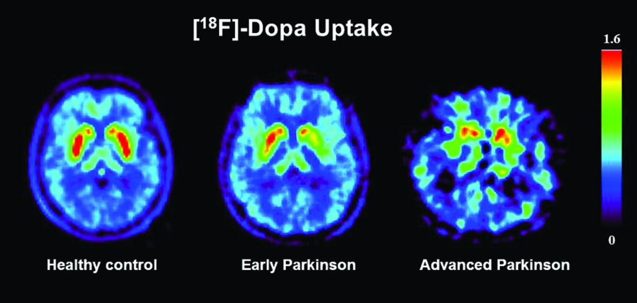 how to optimize medicine use in parkinsons disease
