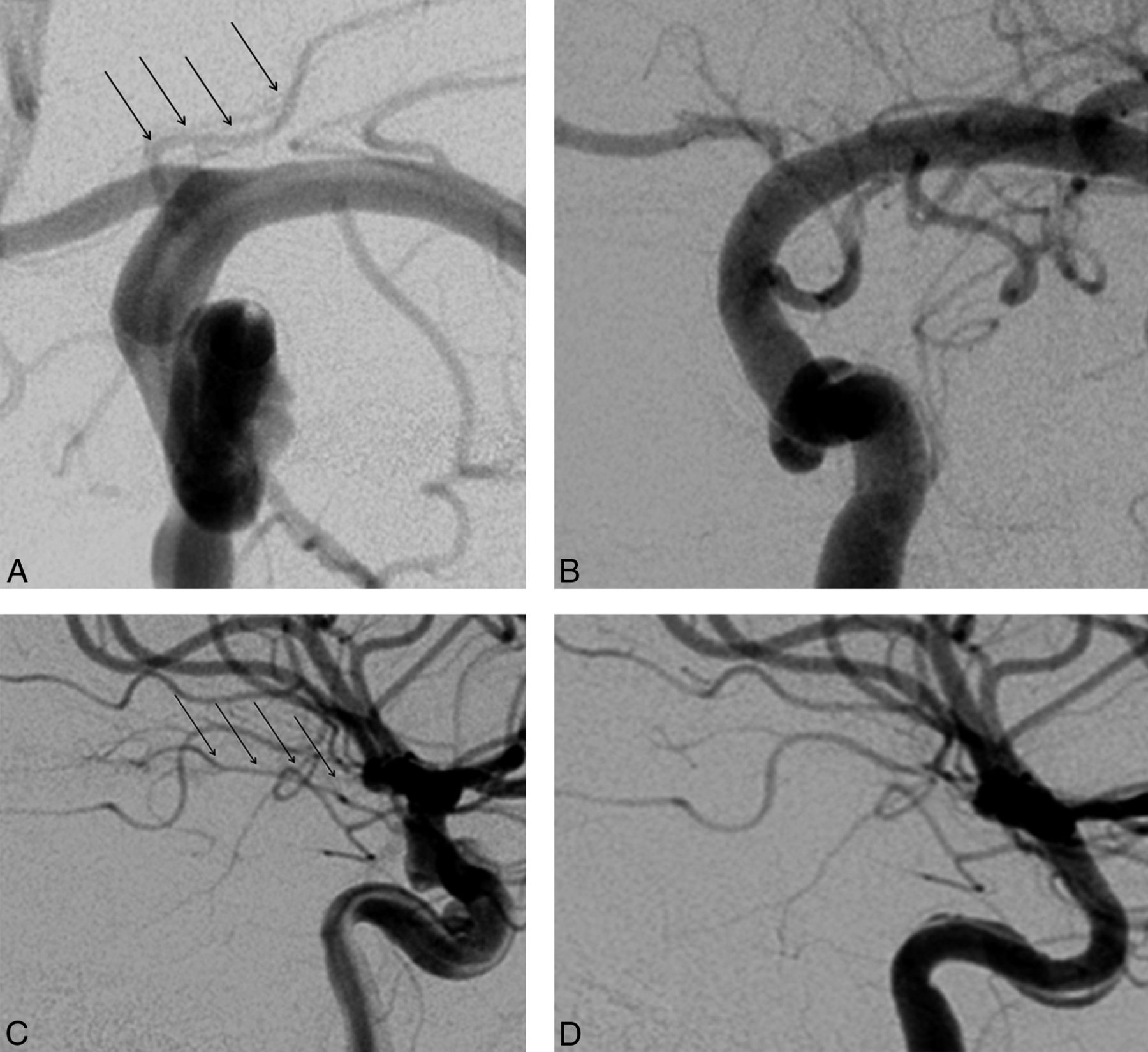 Patency Of The Anterior Choroidal Artery After Flow Diversion