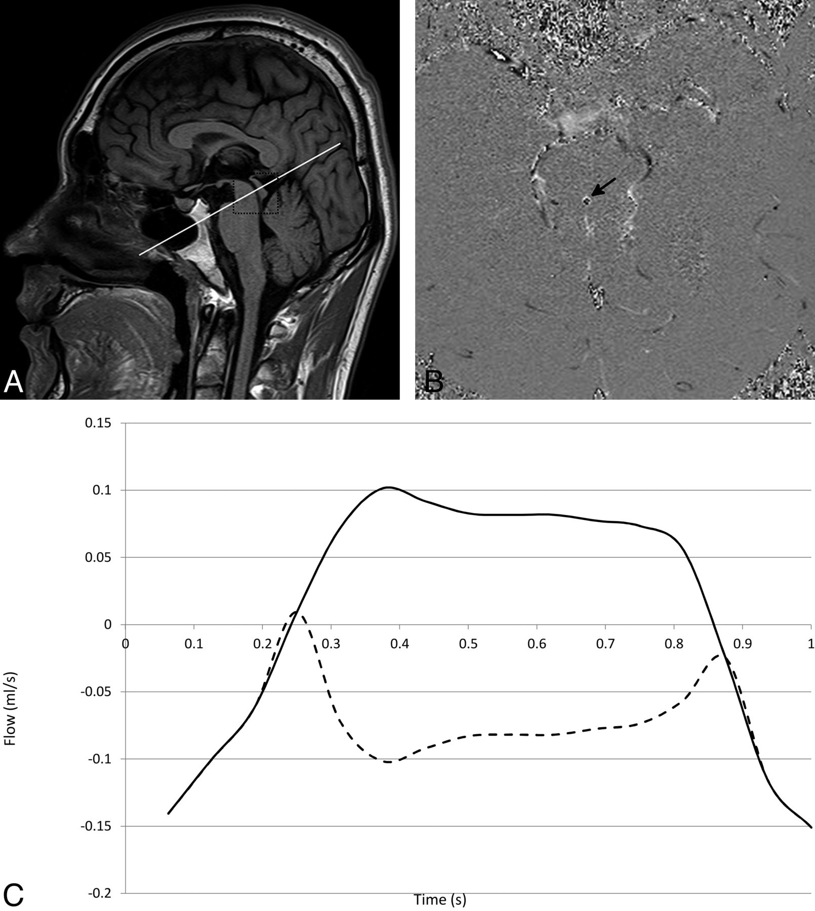 Current And Emerging Mr Imaging Techniques For The Diagnosis