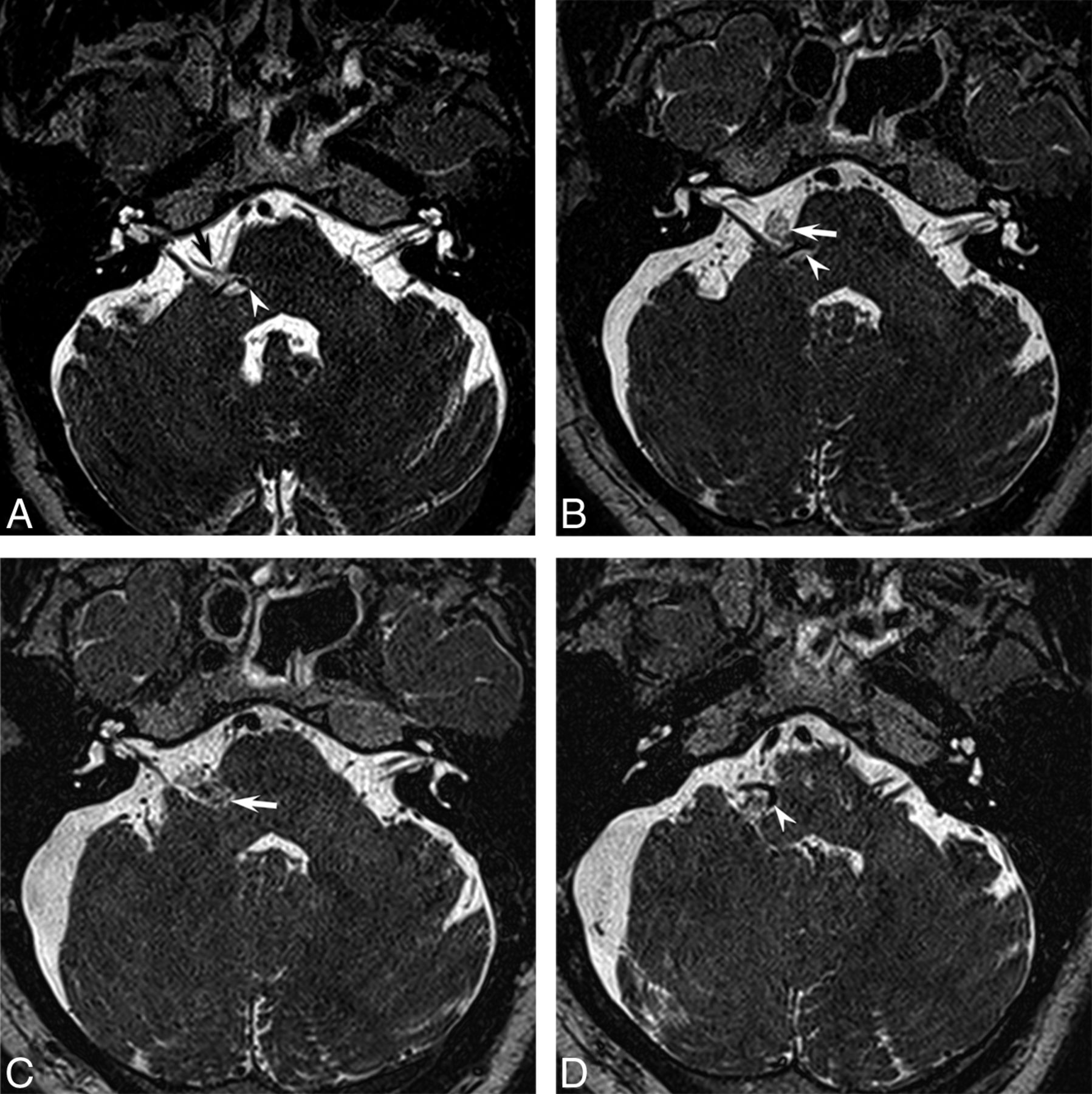 MRI Findings in Patients with a History of Failed Prior