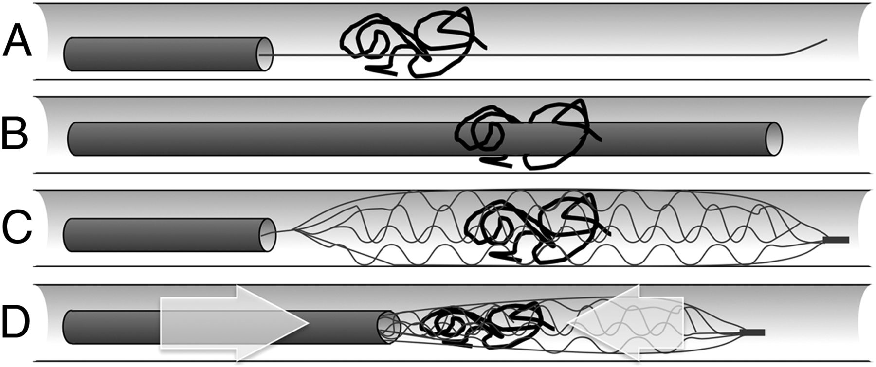 Retrieval of Migrated Coils with Stent Retrievers: An Animal