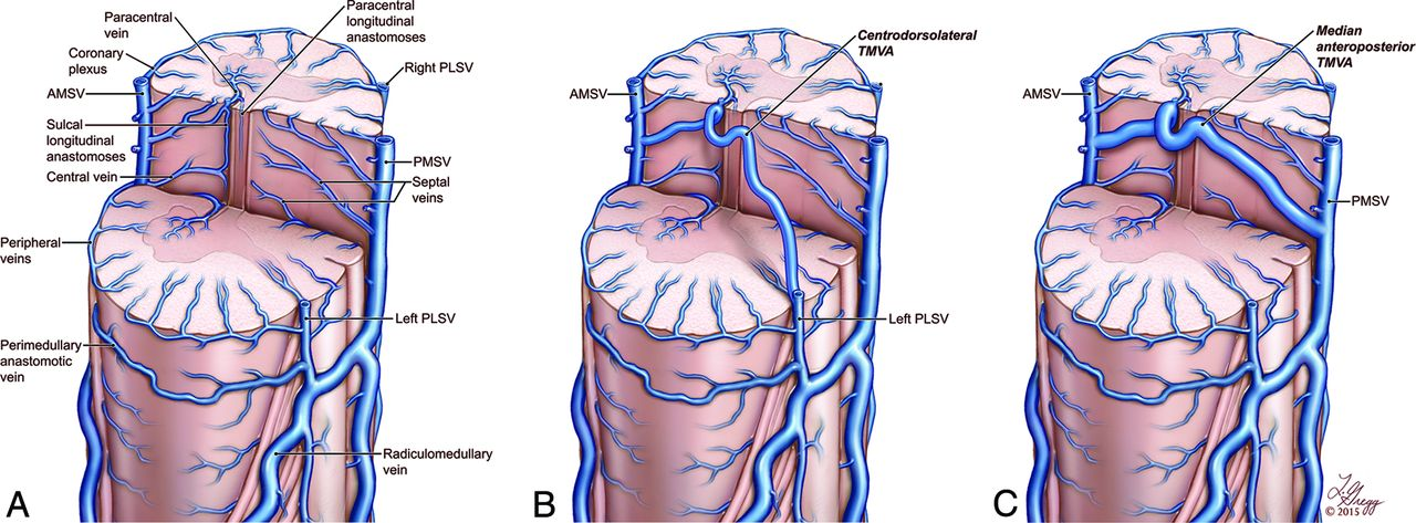 Transmedullary Venous Anastomoses Anatomy And Angiographic