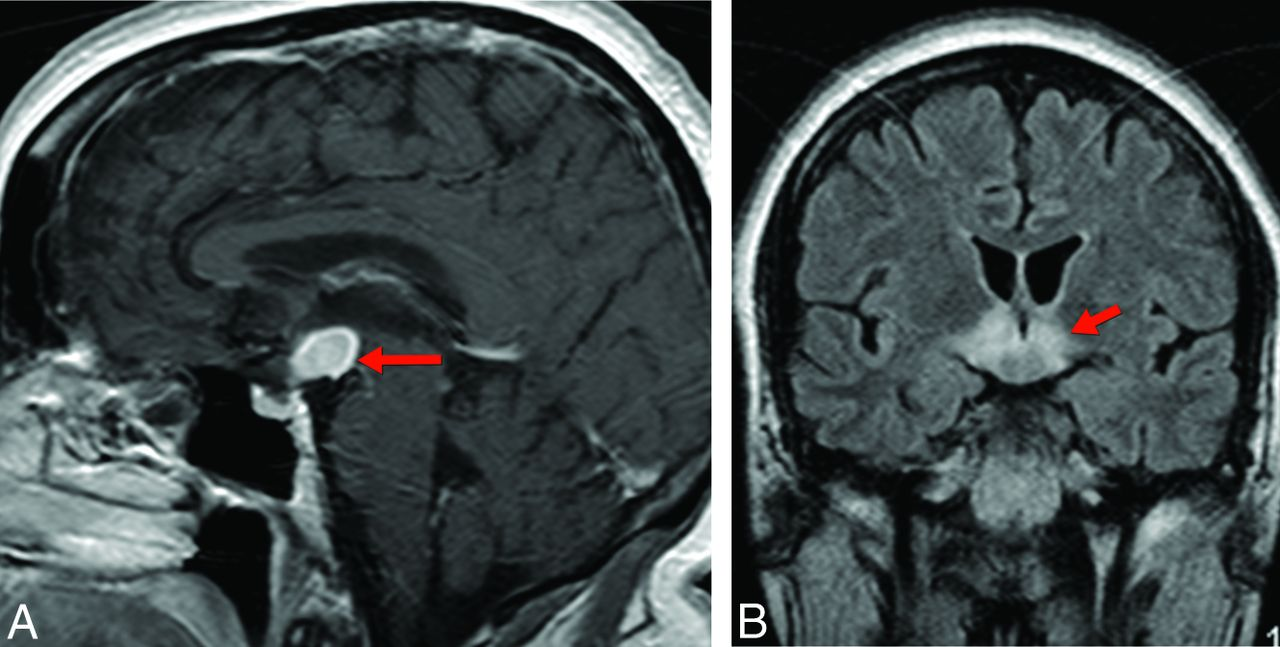 Memory Part 3: The Role of the Fornix and Clinical Cases ...