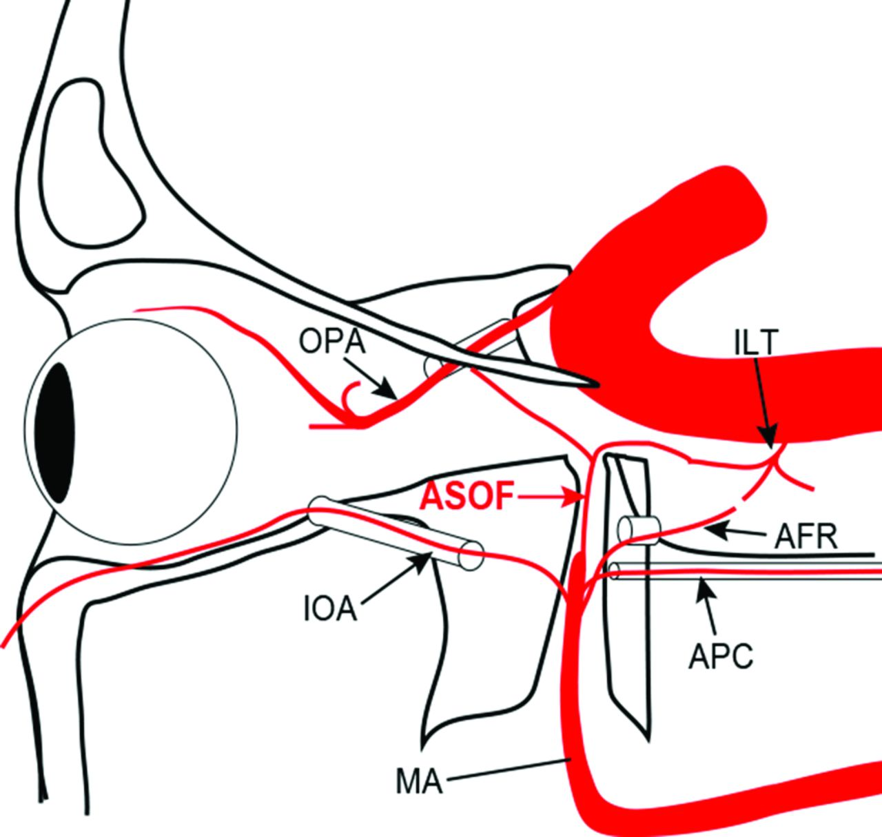 Artery of the Superior Orbital Fissure: An Undescribed Branch from ...