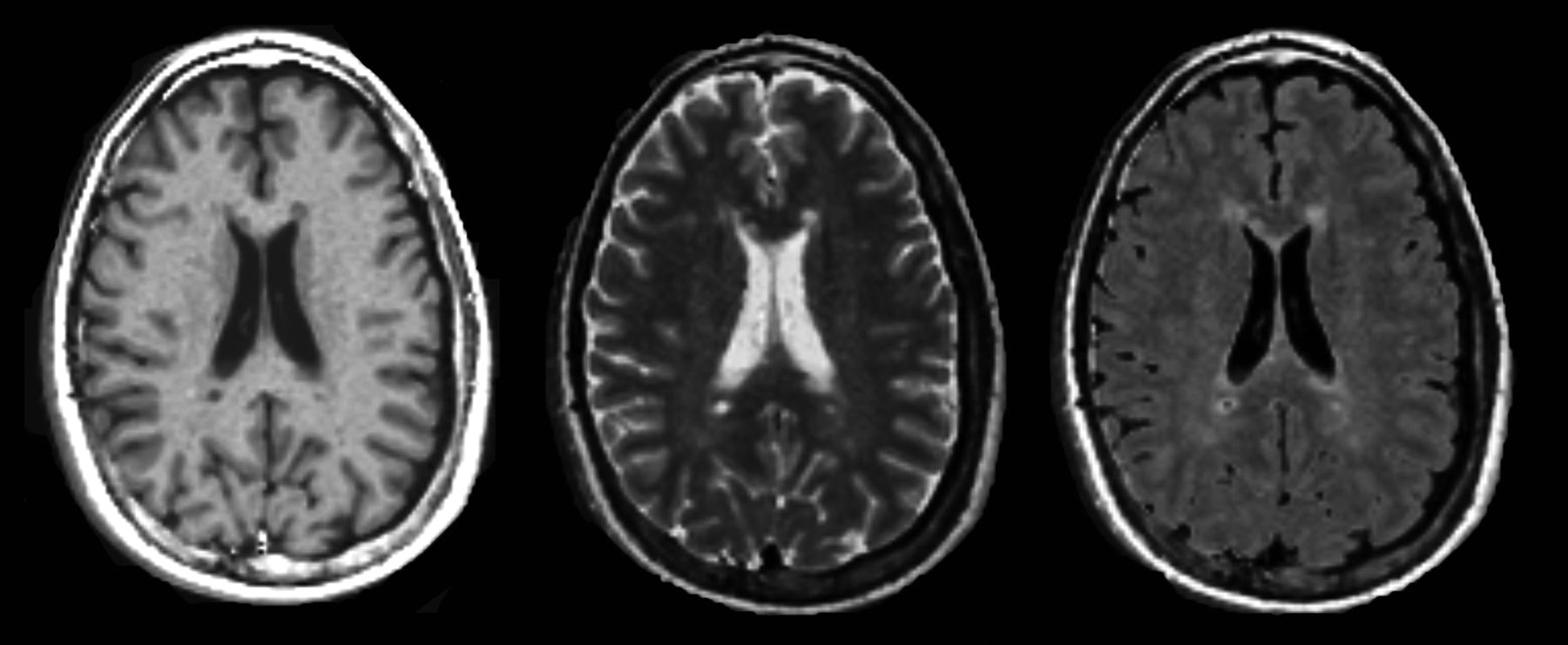 Quantitative MRI for Analysis of Active Multiple Sclerosis