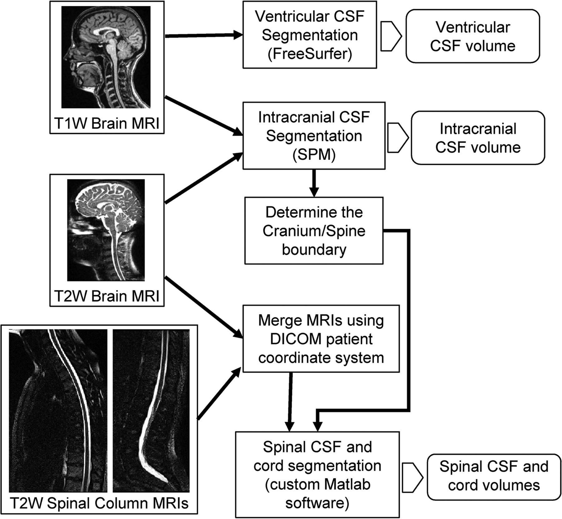 Automated Quantitation of Spinal CSF Volume and Measurement