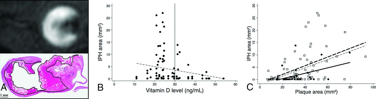 Vitamin D and Vulnerable Carotid Plaque | American Journal of