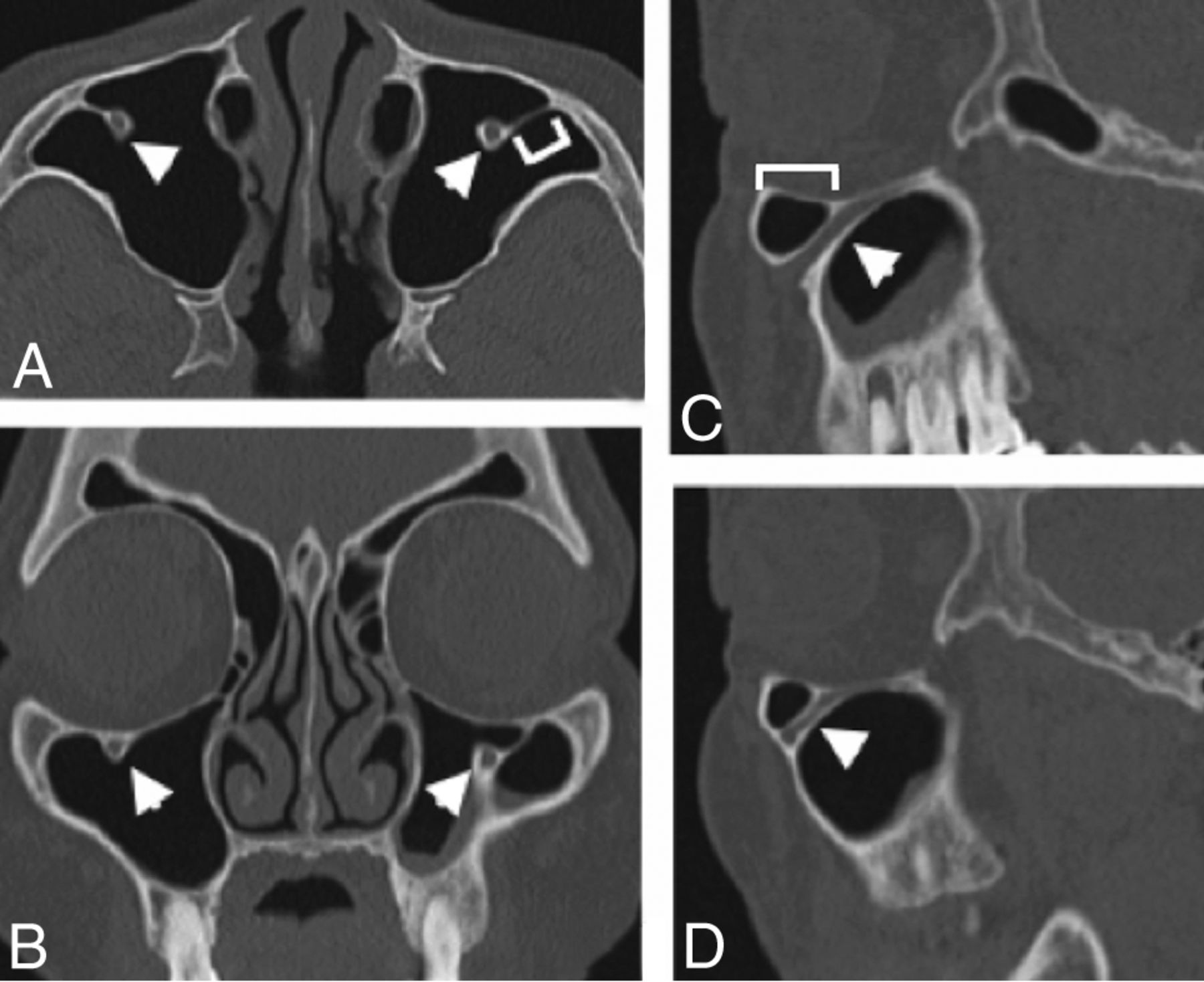 Protrusion of the Infraorbital Nerve into the Maxillary Sinus on CT ...