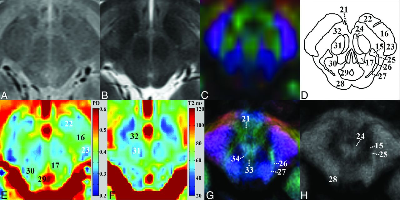 New Clinically Feasible 3T MRI Protocol to Discriminate Internal ...