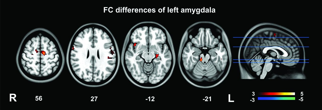 Abnormal Amygdala Resting-State Functional Connectivity in Irritable ...