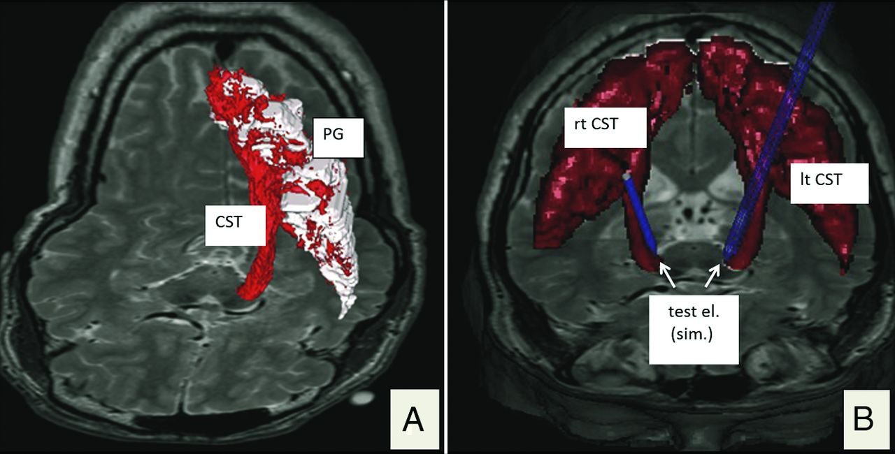 Electrophysiologic Validation of Diffusion Tensor Imaging ...