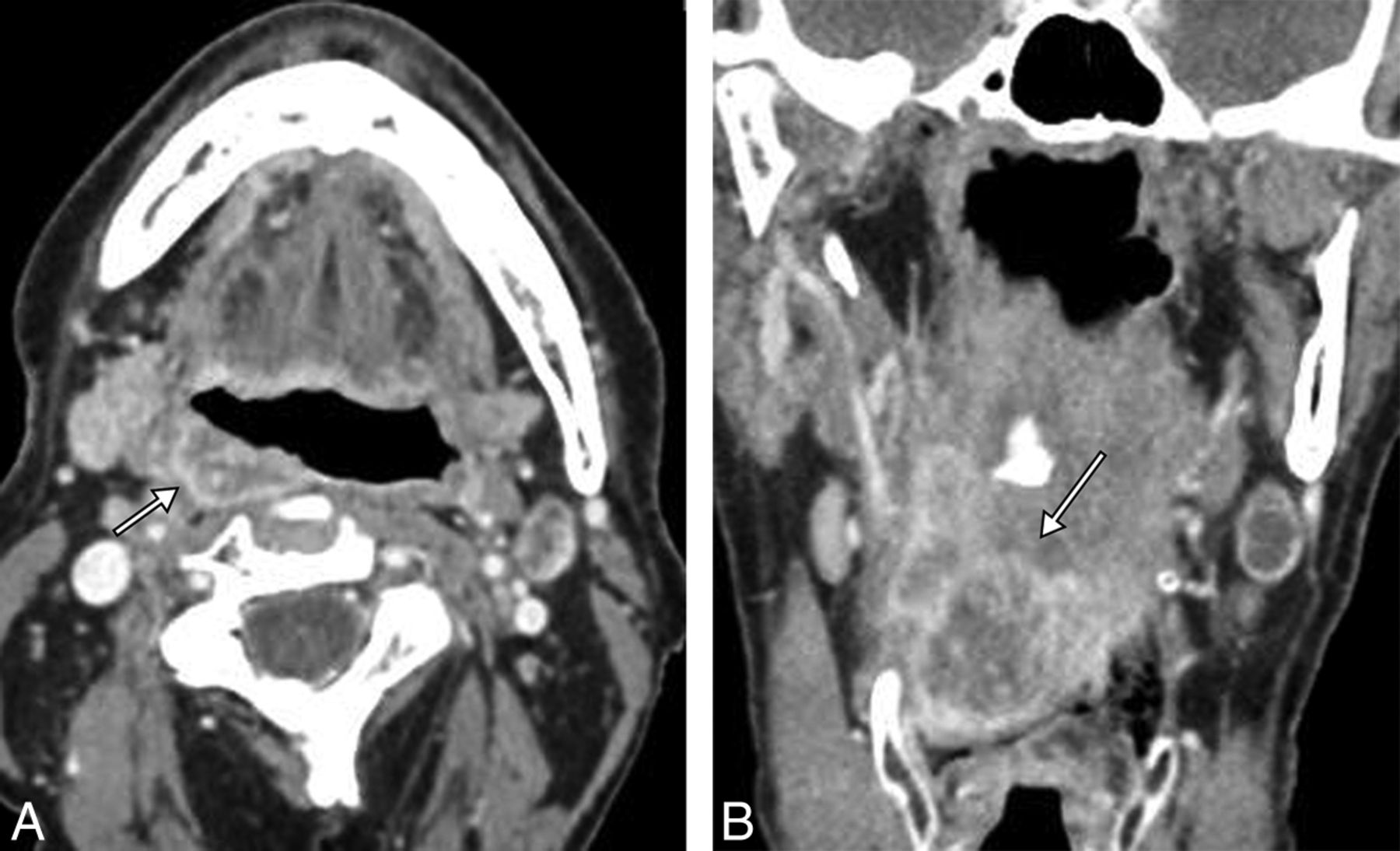 Do Radiologists Report the TNM Staging in Radiology Reports