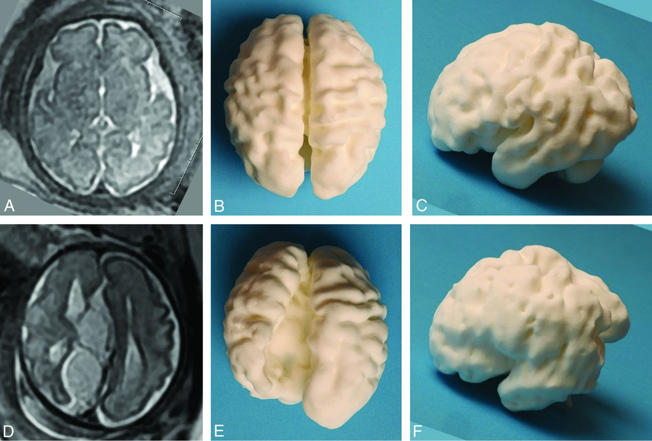 Demonstration of Normal and Abnormal Fetal Brains Using 3D Printing ...