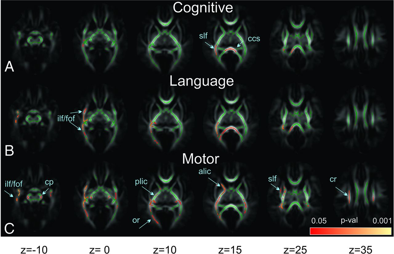 White Matter Injury and General Movements in High-Risk