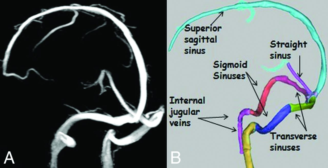Use of Phase-Contrast MRA to Assess Intracranial Venous Sinus ...