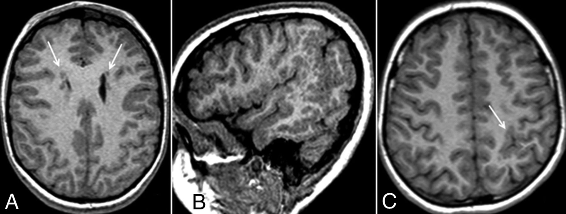 Fig 1. | The Prevalence of Malformations of Cortical Development in a  Pediatric Hereditary Hemorrhagic Telangiectasia Population | American  Journal of ...