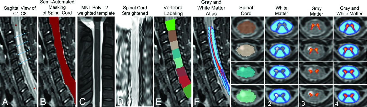 MRI Atlas-Based Measurement of Spinal Cord Injury Predicts Outcome ...
