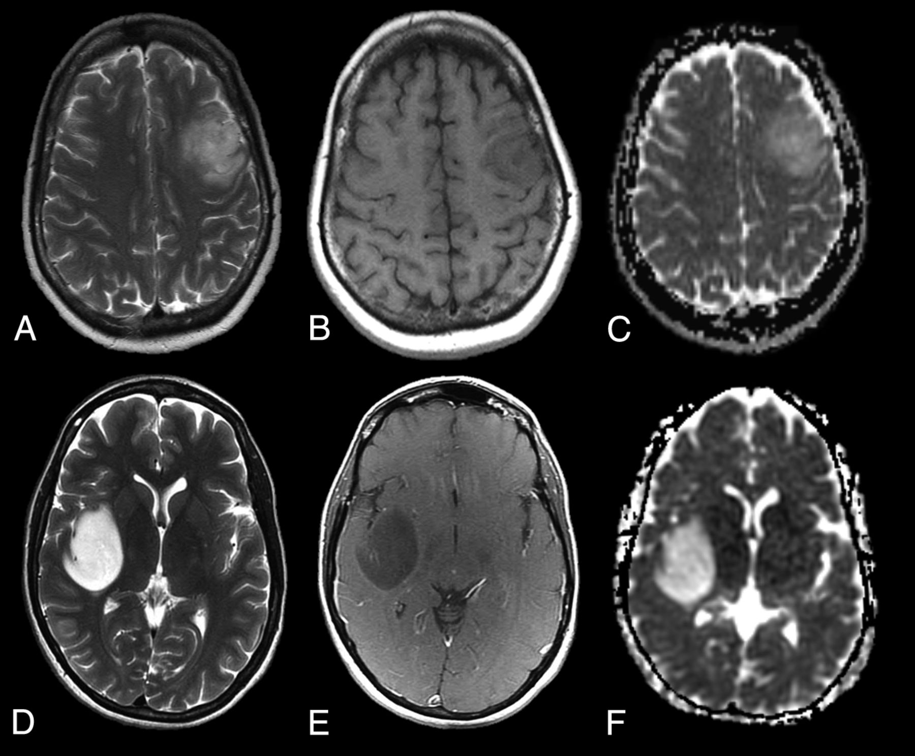 Genetically Defined Oligodendroglioma Is Characterized by Indistinct ...