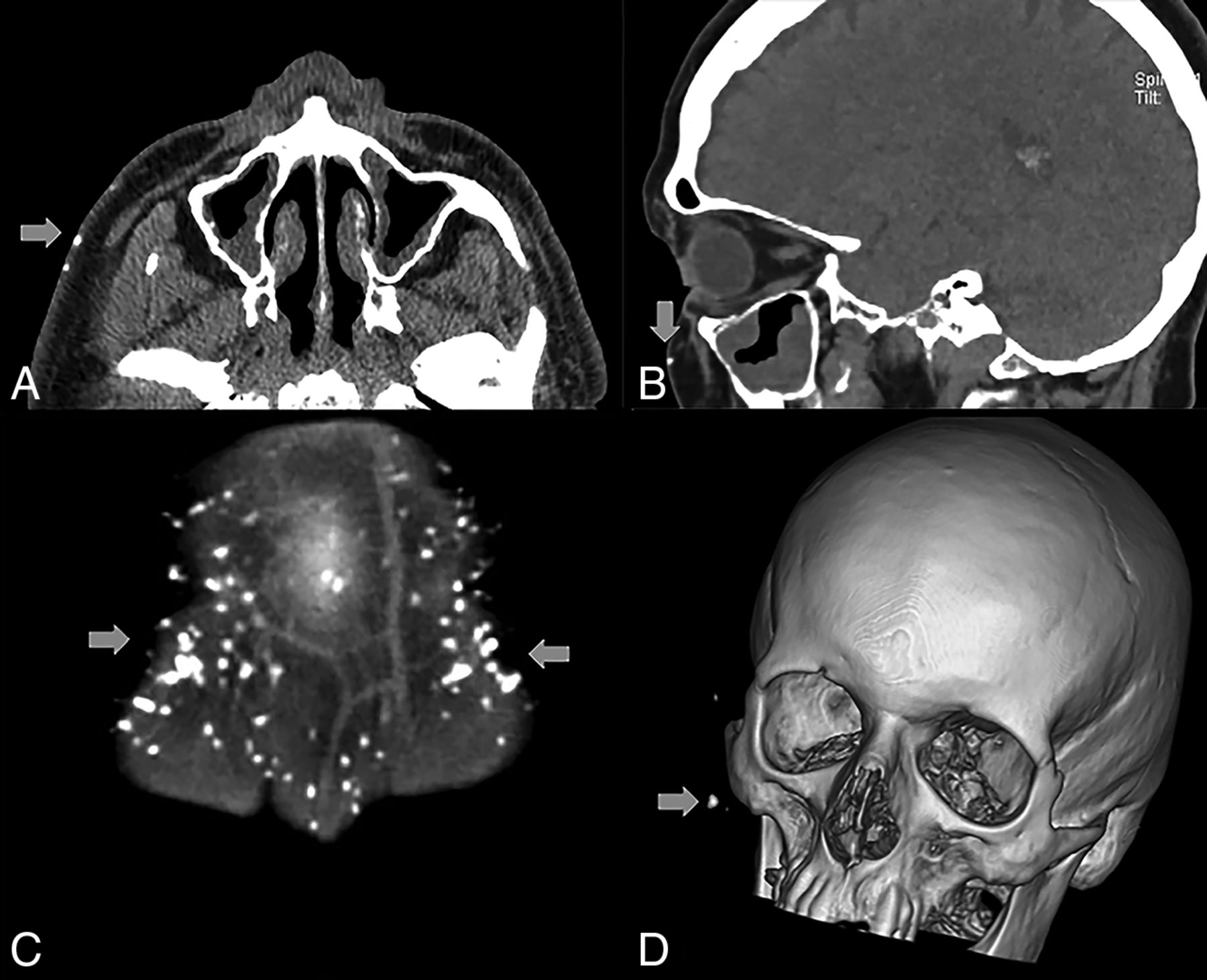 Benign Miliary Osteoma Cutis Of The Face A Common Incidental Ct