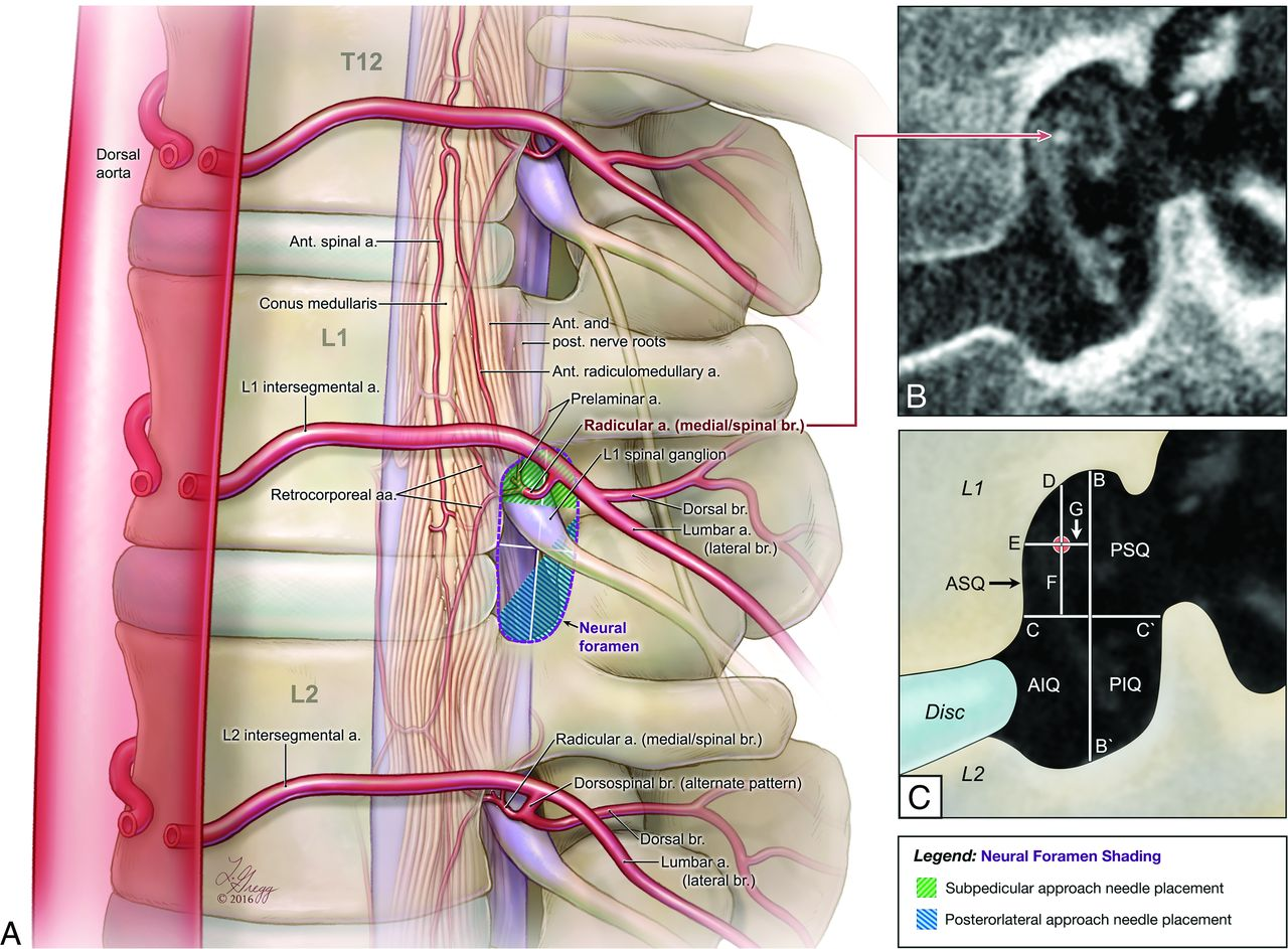 Intraforaminal Location Of Thoracolumbar Radicular Arteries