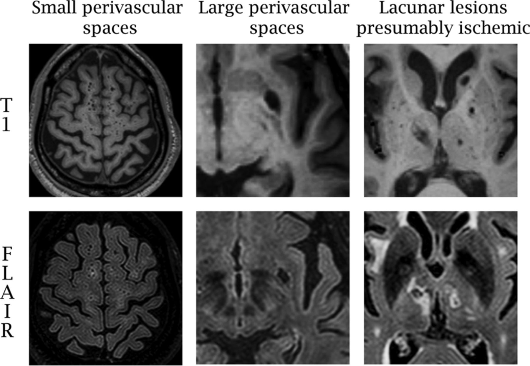 Brain Perivascular Spaces as Biomarkers of Vascular Risk