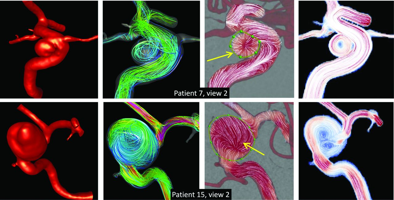 Fig 5  | Understanding Angiography-Based Aneurysm Flow Fields