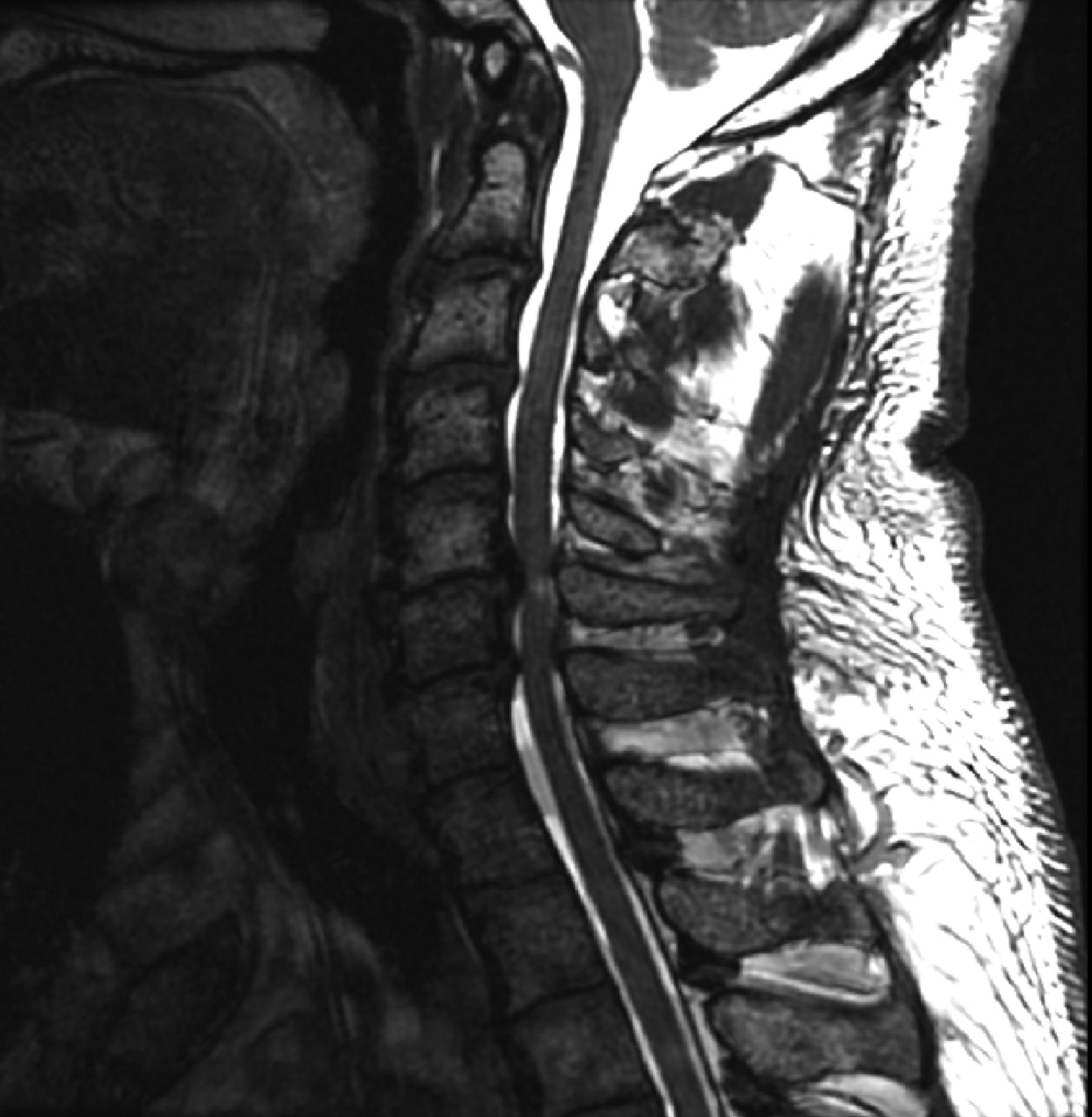 Describe gray and white matter distribution in the spinal cord