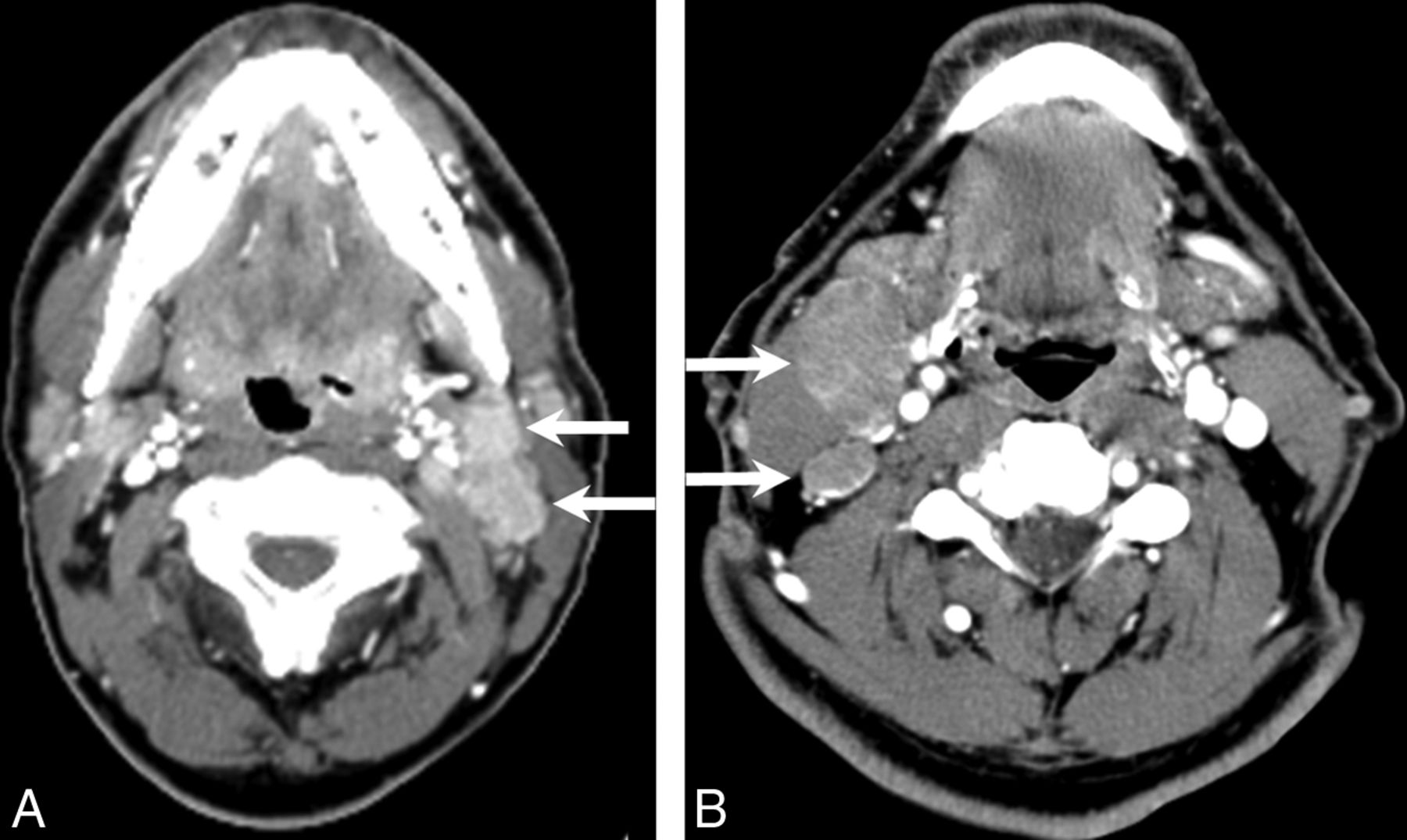 Solid Lymph Nodes as an Imaging Biomarker for Risk