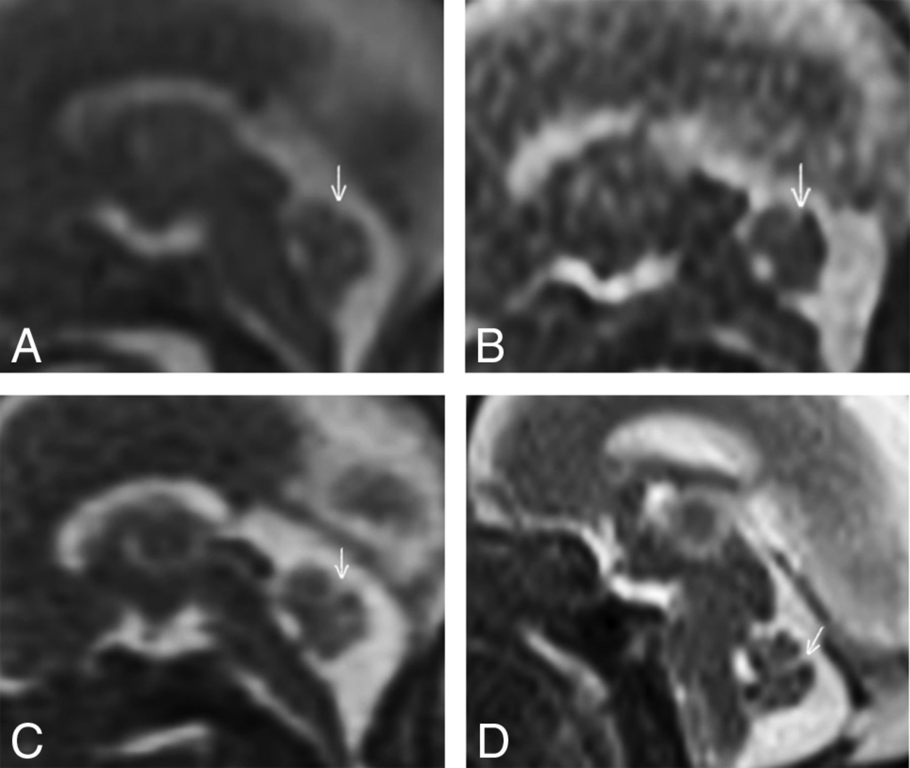 Does 3T Fetal MRI Improve Image Resolution of Normal Brain ...