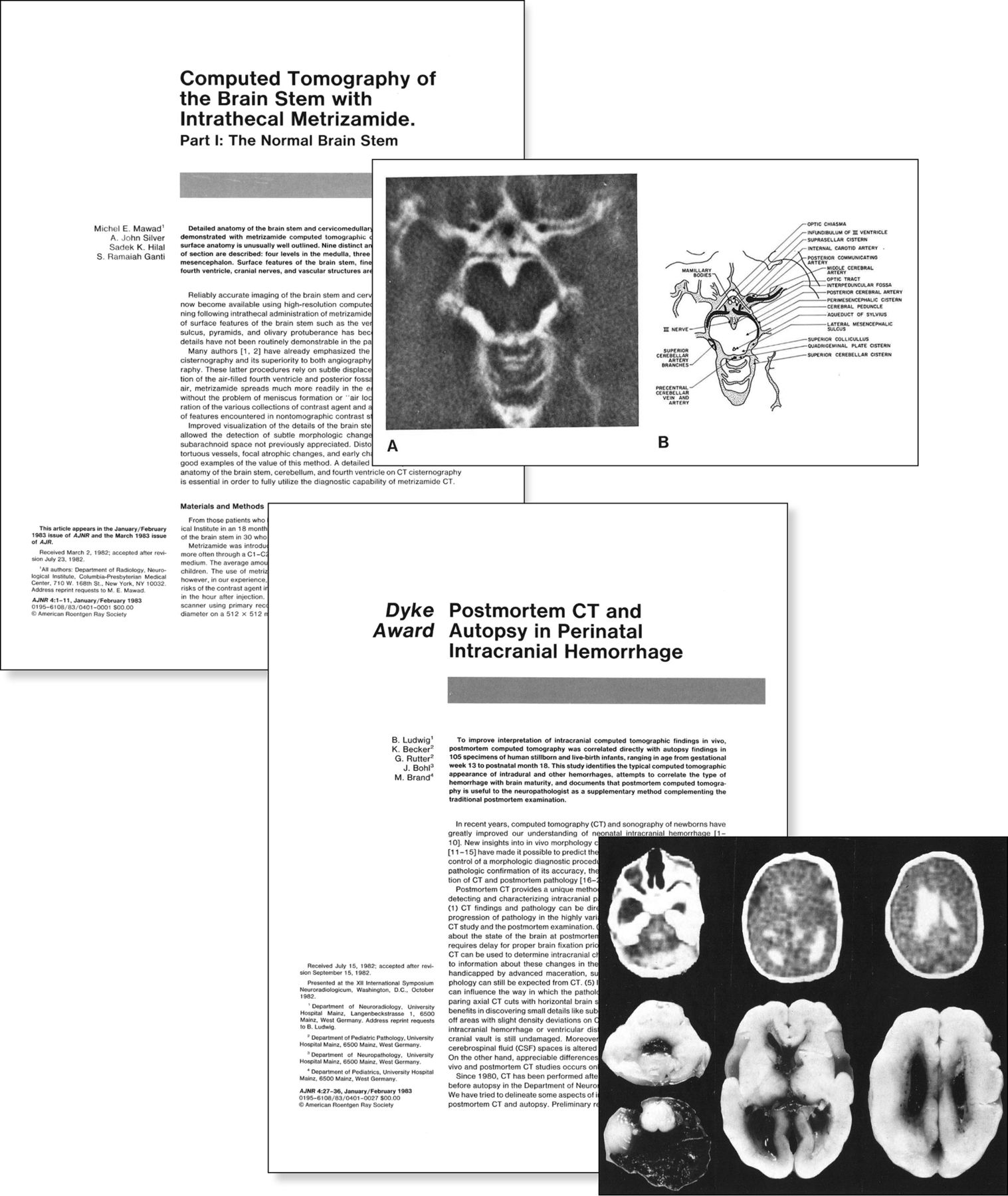 Celebrating 35 Years Of The Ajnr American Journal Of Neuroradiology