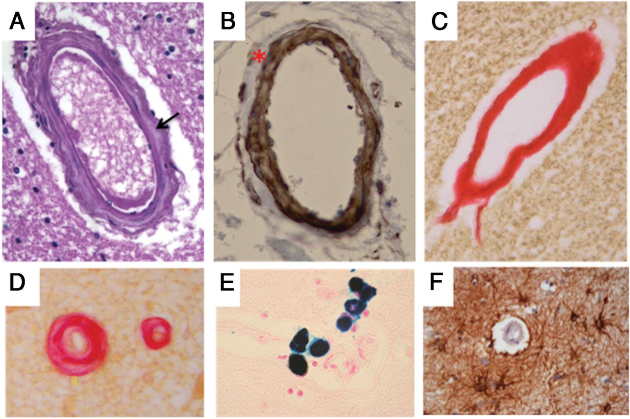 Cerebral Mitochondrial Microangiopathy Leads to