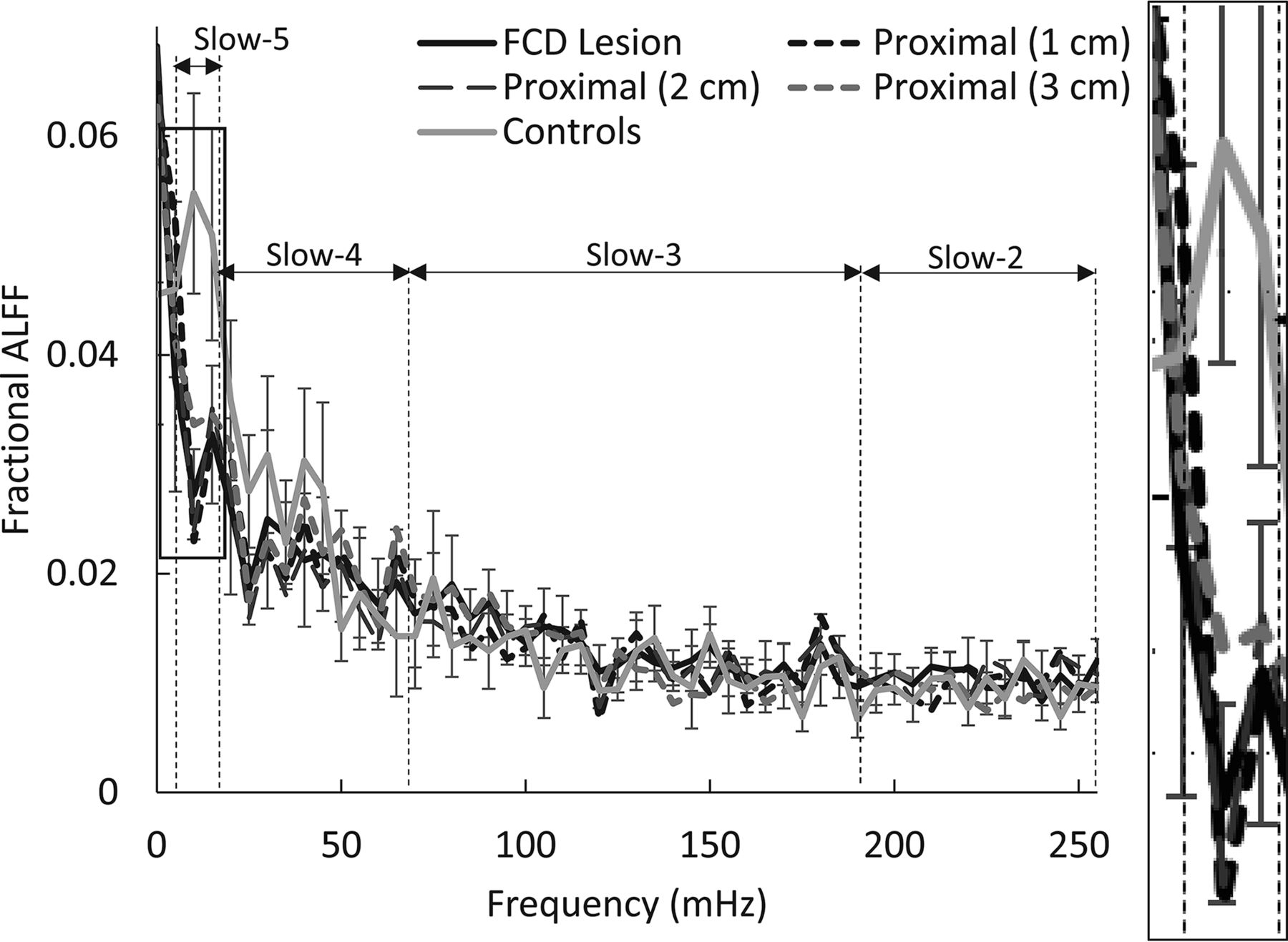 Abnormal Blood Oxygen Level–Dependent Fluctuations in Focal