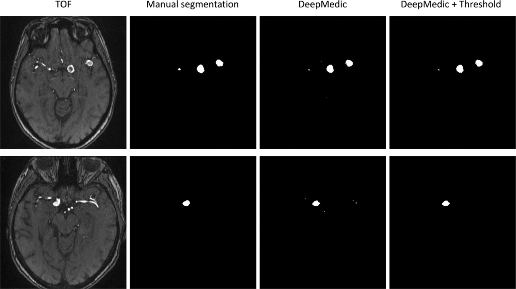 Deep Learning–Based Detection of Intracranial Aneurysms in 3D TOF
