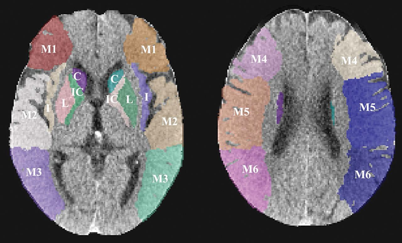 Automated ASPECTS on Noncontrast CT Scans in Patients with