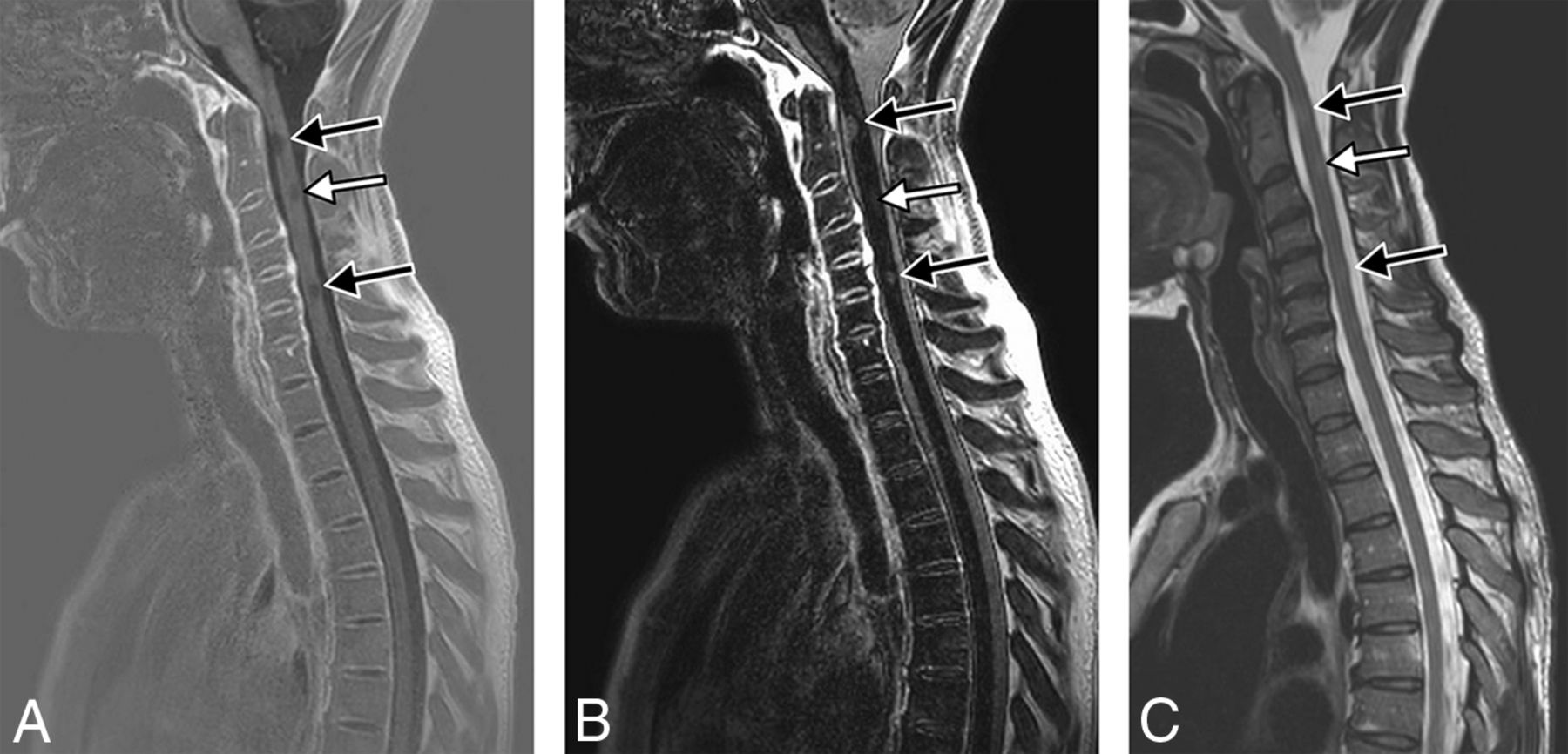 A 3T Phase-Sensitive Inversion Recovery MRI Sequence
