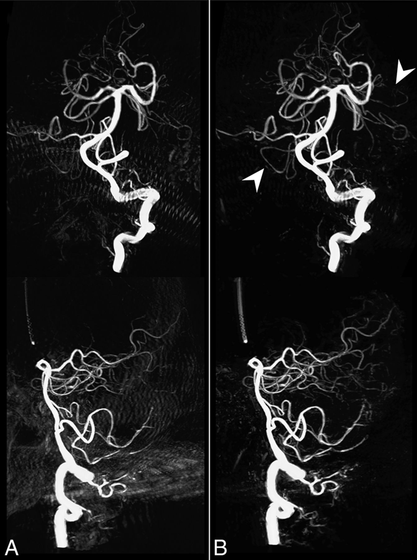 3D Deep Learning Angiography (3D-DLA) from C-arm Conebeam CT