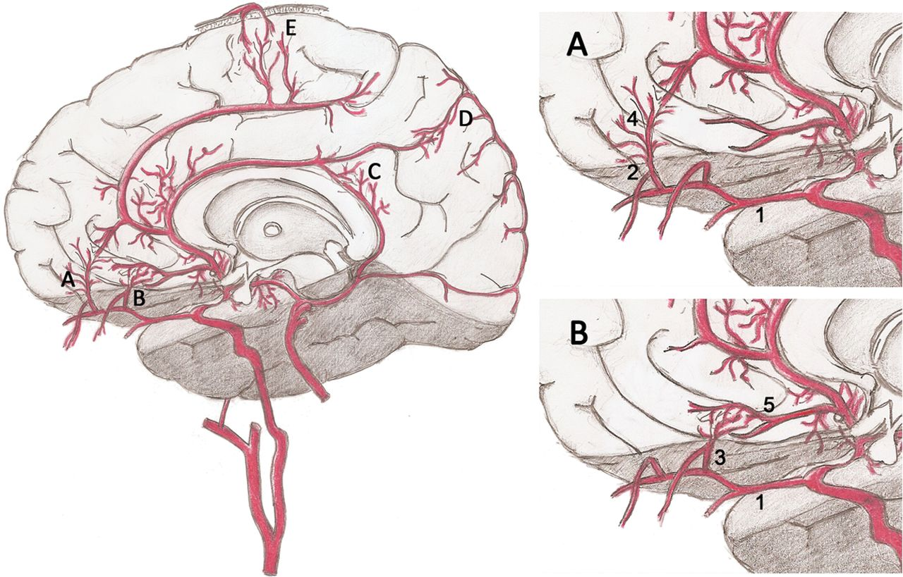 Anatomic and Angiographic Analyses of Ophthalmic Artery Collaterals ...