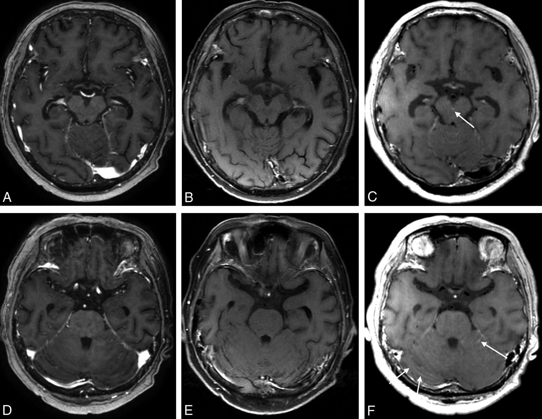 Blood mri t1 weighted Hematoma overview