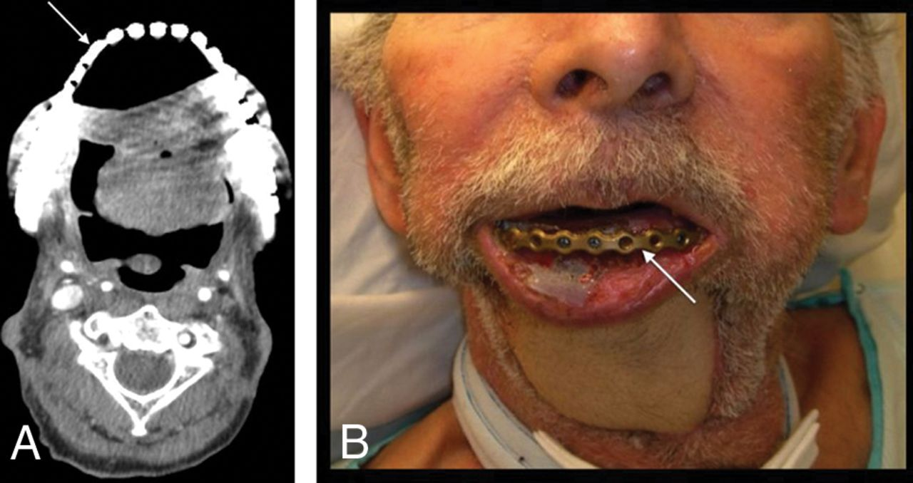 Imaging of Surgical Free Flaps in Head and Neck ... Early Oral Cancer On Tongue