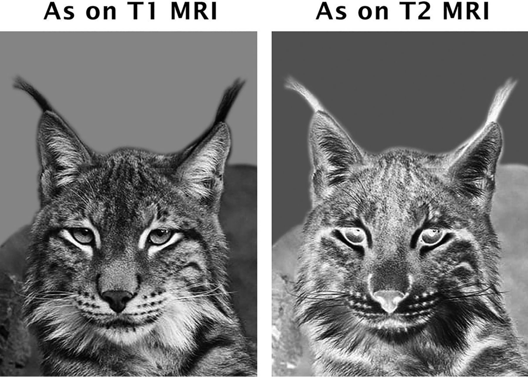 """Ears of the Lynx"""" MRI Sign Is Associated with SPG11 and"""
