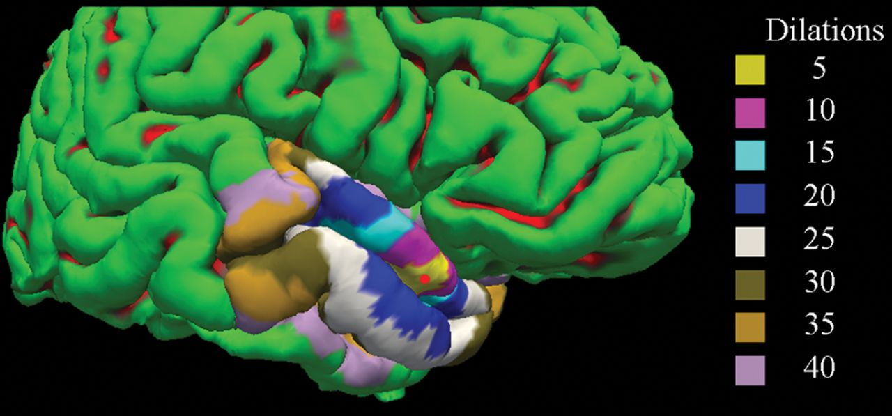 Leptomeningeal Contrast Enhancement Is Related to Focal