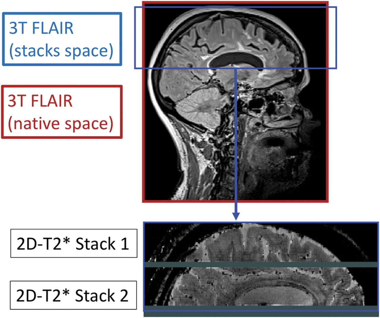 Comparison of Multiple Sclerosis Cortical Lesion Types