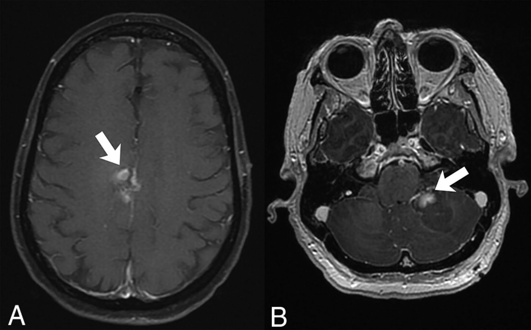 Dynamic Contrast-Enhanced MRI in Patients with Brain Metastases