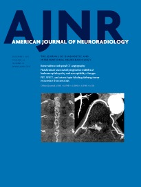Impact of Software Modeling on the Accuracy of Perfusion MRI