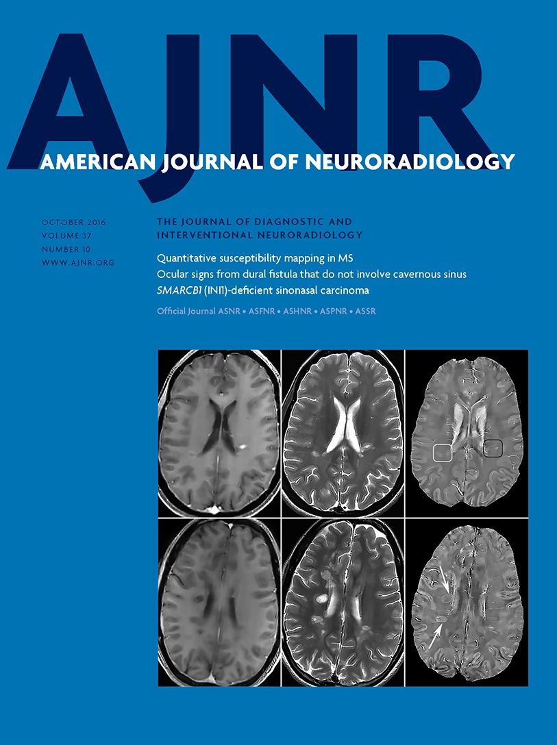 White Matter Hyperintensity Volume and Cerebral Perfusion in
